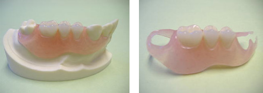 奥歯用の入れ歯説明写真2