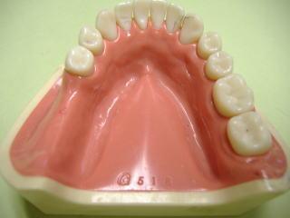 奥歯用の入れ歯説明写真