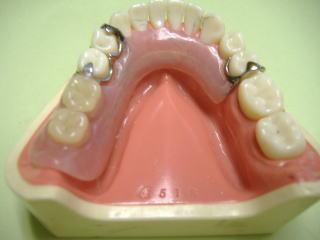 奥歯用の入れ歯説明模型写真