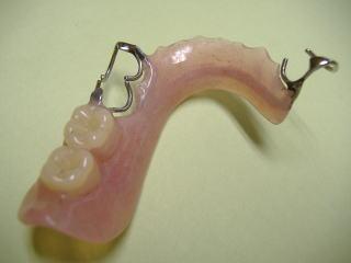 奥歯用入れ歯 説明写真ー外したところ