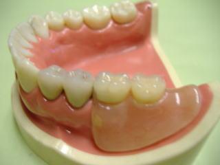 奥歯用入歯説明写真