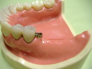 奥歯用入歯-アタッチメント義歯取り付け部分