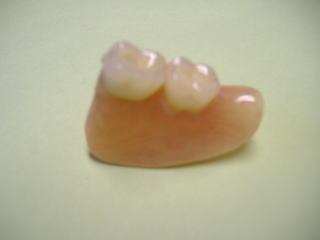 奥歯用入歯-アタッチメント義歯本体