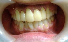 治療途中-仮歯の写真